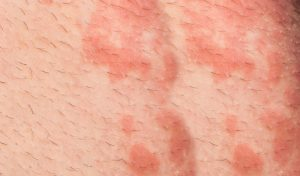 פריחת חצבת (צילום אילוסטרציה: א.ס.א.פ קריאייטיב INGIMAGE|)