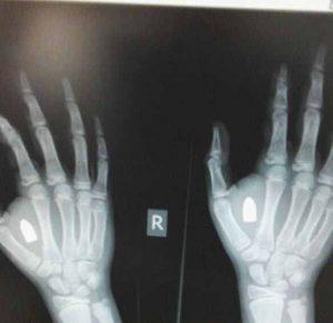 צילום הרנטגן של הילד עם הקליע בכף ידו (צילום: טרם)