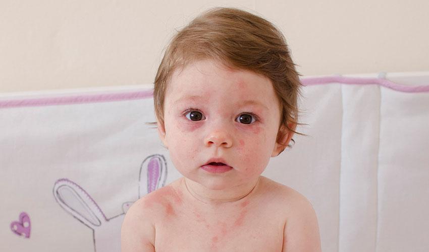 תינוק עם פריחה (צילום: א.ס.א.פ קריאייטיב/INGIMAGE)