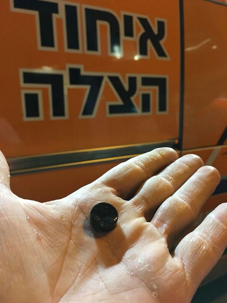 הכפתור שיצא מגרונה של התינוקת (צילום: דוברות איחוד הצלה)