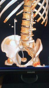 ריסוק אבני כליה (צילום: דוברות שערי צדק)