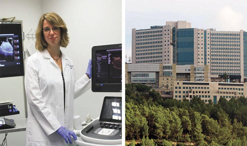 """המרכז הרפואי הדסה עין כרם, ד""""ר ליאת אפלבאום (צילומים: אבי חיון, דוברות הדסה)"""