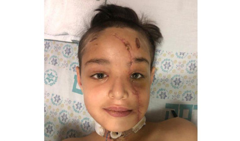 הילד יוסף ג'רדאת לאחר הניתוח (צילום: דוברות הדסה)