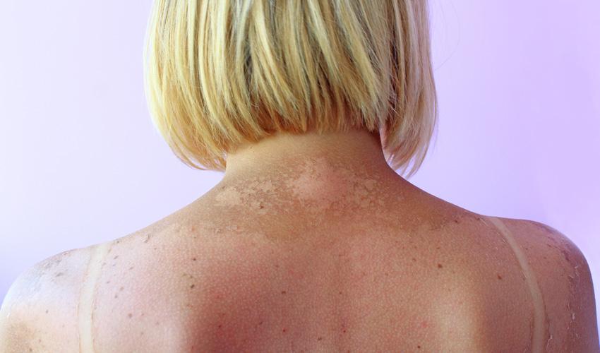 נזקי חשיפה לשמש (צילום אילוסטרציה: א.ס.א.פ קריאייטיב/INGIMAGE)