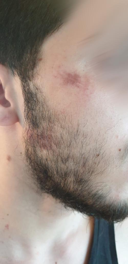 נער עם אוטיזם הוכה (צילום: פרטי)