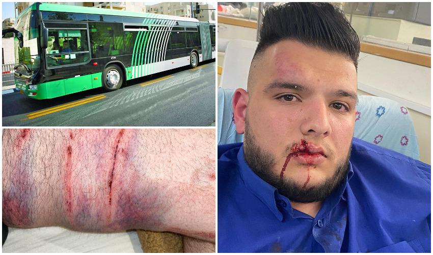 מזעזע: נהג אגד בפסגת זאב התלונן במשטרה – נוסע שיסה בי את כלב הפיטבול שלו