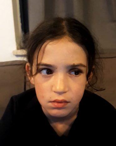 הילדה לאחר הניתוח (צילום: דוברות שערי צדק)