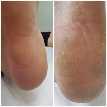 טיפול בסדקים ויובש כף הרגל (צילום: פרטי)
