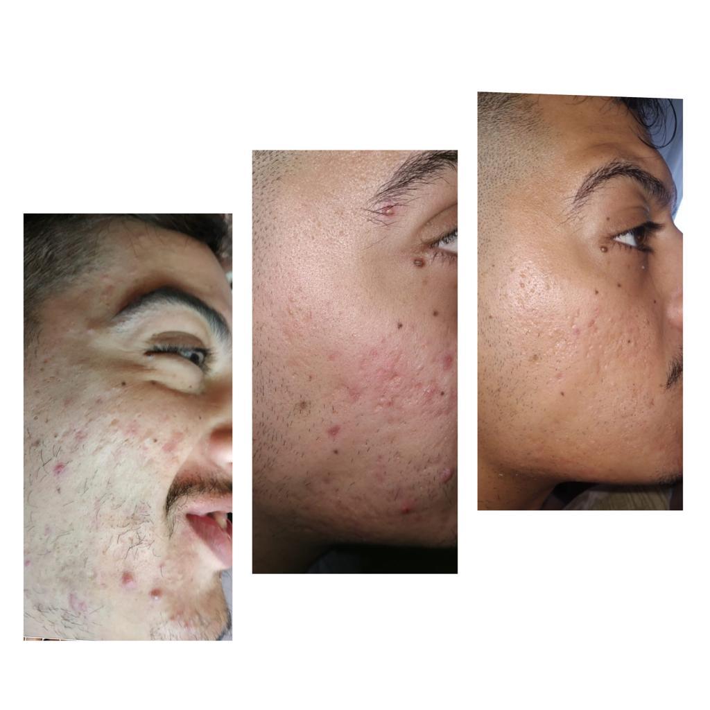 טיפול בבעיות עור - לפני ואחרי (צילום: נטלי חנוכה)