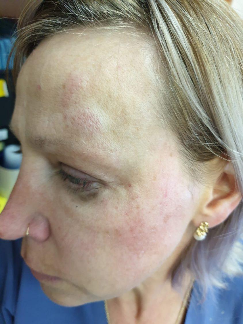 הרופאה שהותקפה בהדסה (צילום: דוברות הדסה)