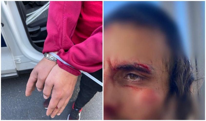 פניו של האדם שהותקף בשייח ג'ראח, מעצר אחד החשודים (צילומים: דוברות המשטרה)